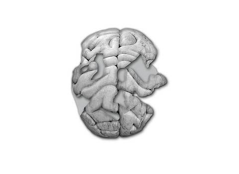 Damaged Human Brain by Victor De Schwanberg