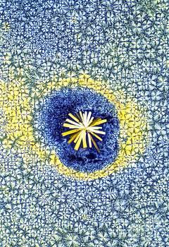 David Parker - Retinoic Acid Crystal Light Micrograph