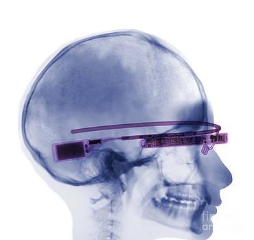 Ted Kinsman - Woman Wearing Google Glass X-ray