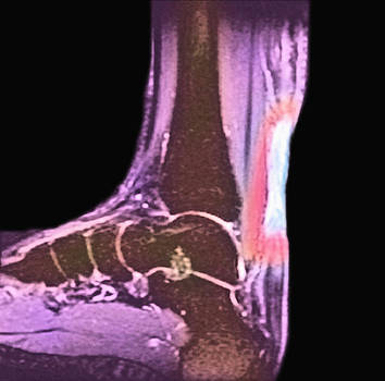 Achilles Tendon Injury, X-ray by Science Stock Photography