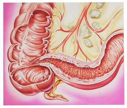 Crohn's Disease by John Bavosi