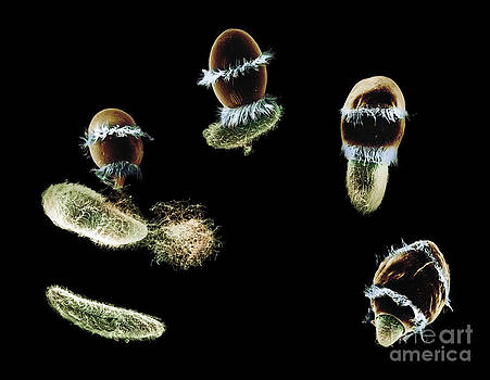 Greg Antipa - Didinium Ingesting Paramecium