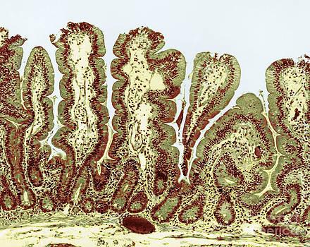 Science Source - Giardiasis Light Micrograph