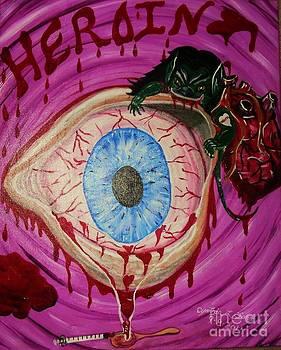 Heroin by Cynthia Farmer