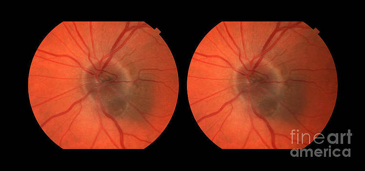 Paul Whitten - Melanoma Of The Optic Nerve Stereo Image