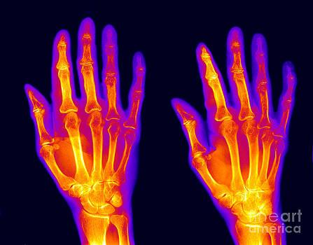 Ted Kinsman - Normal Hand
