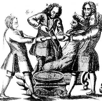 Science Source - Amputation 1719