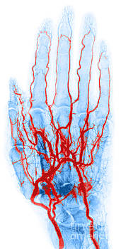 Science Source - Hand Arteriogram
