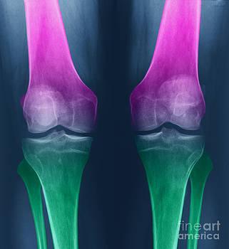 Ted Kinsman - Osteoarthritis Of The Knees