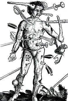 Science Source - Wound Man 1517
