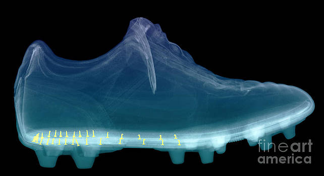 Ted Kinsman - X-ray Of Shoe