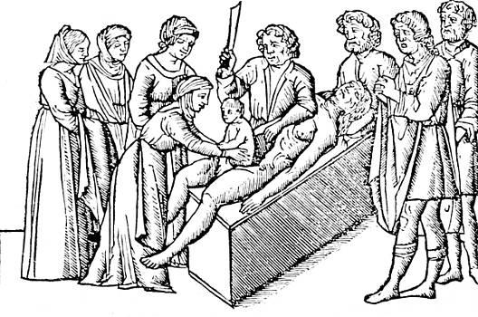 Science Source - Cesarean Section 16th Century