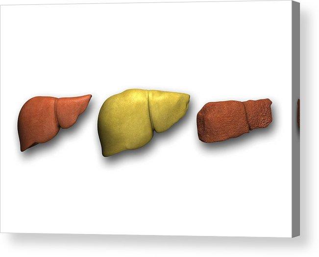Cirrhosis Acrylic Print featuring the photograph Liver: Normal, Fatty, Cirrhotic by Pasieka
