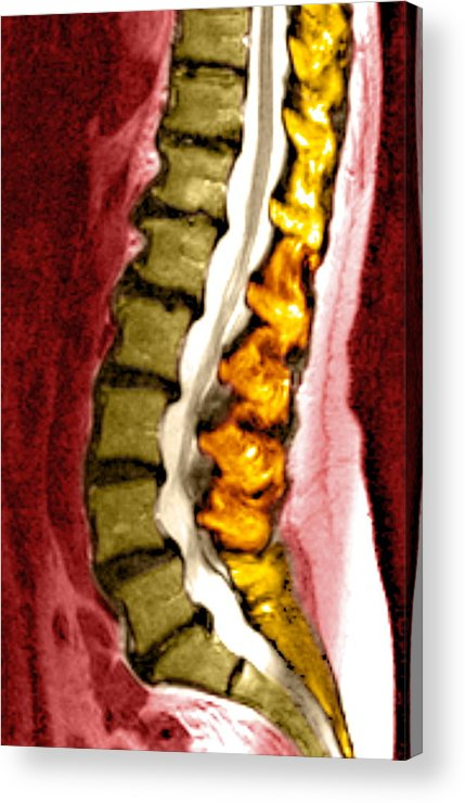 Disorder Acrylic Print featuring the photograph Spine Degeneration, Mri Scan by Du Cane Medical Imaging Ltd