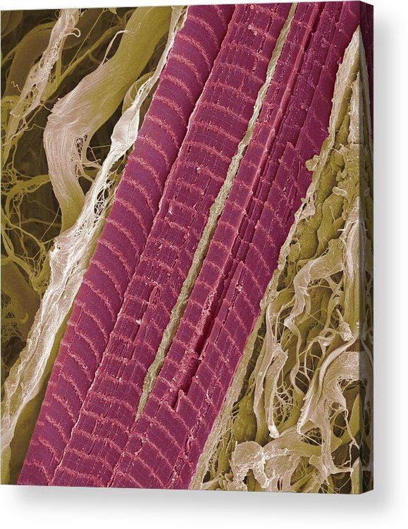Lumbrical Acrylic Print featuring the photograph Primate Finger Muscle, Sem by Steve Gschmeissner