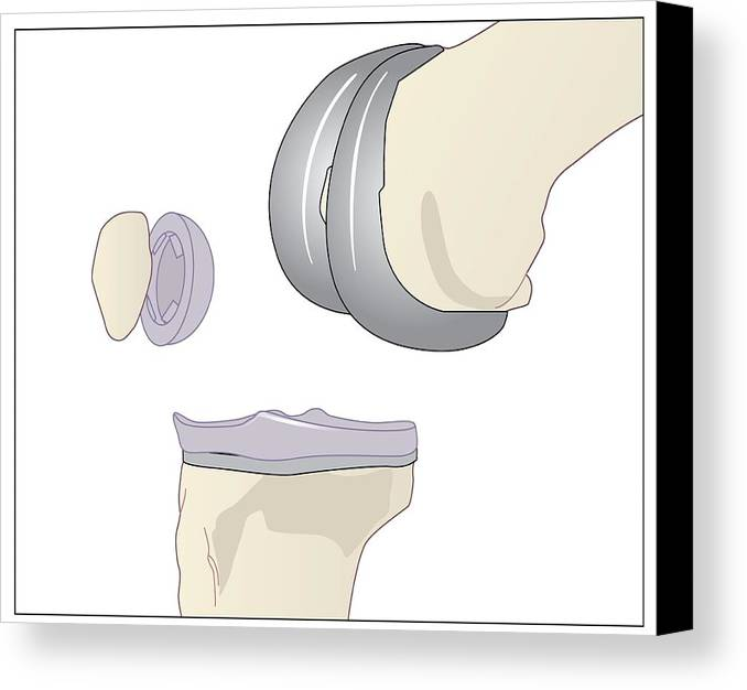 Artwork Canvas Print featuring the photograph Knee Replacement, Artwork by Peter Gardiner
