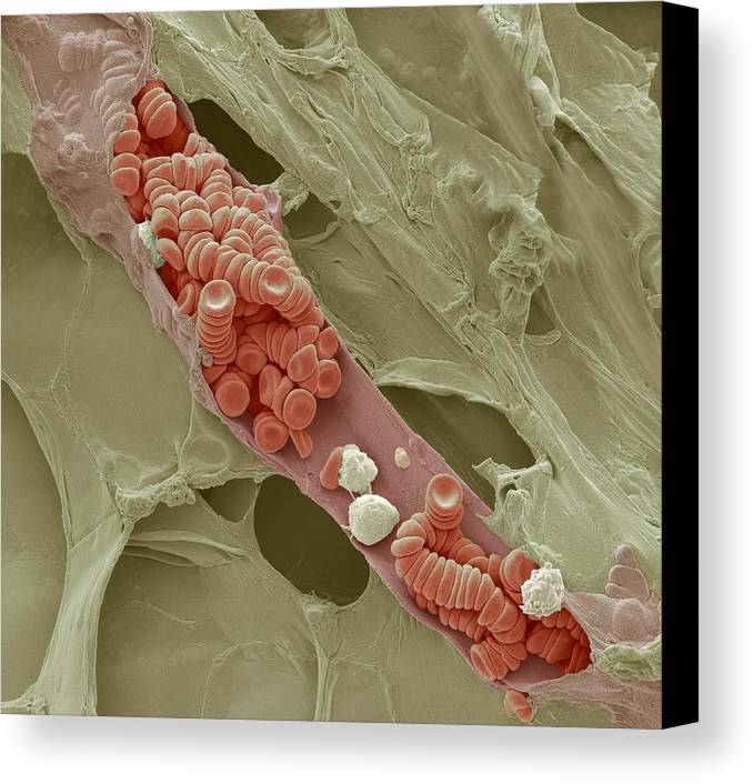 Electron Microscope Canvas Print featuring the photograph Ruptured Venule, Sem by Steve Gschmeissner