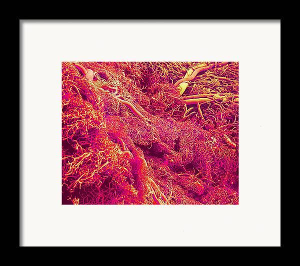 Sem Framed Print featuring the photograph Blood Vessels, Sem by Susumu Nishinaga