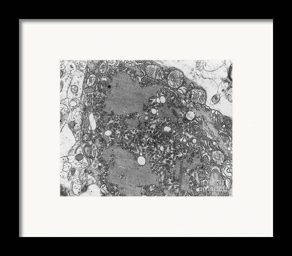 Rabies Framed Print featuring the photograph Rabies Virus by Science Source