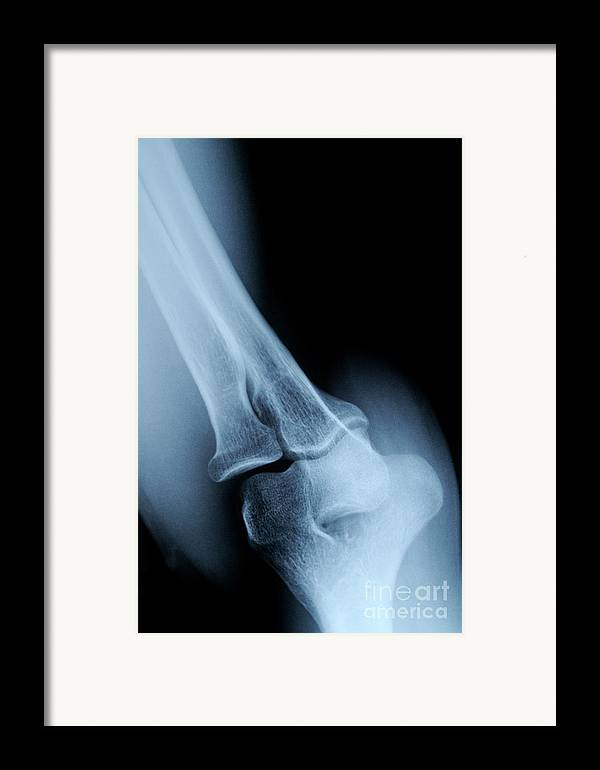 People Framed Print featuring the photograph X-ray Image Of Mature's Man Elbow by Sami Sarkis