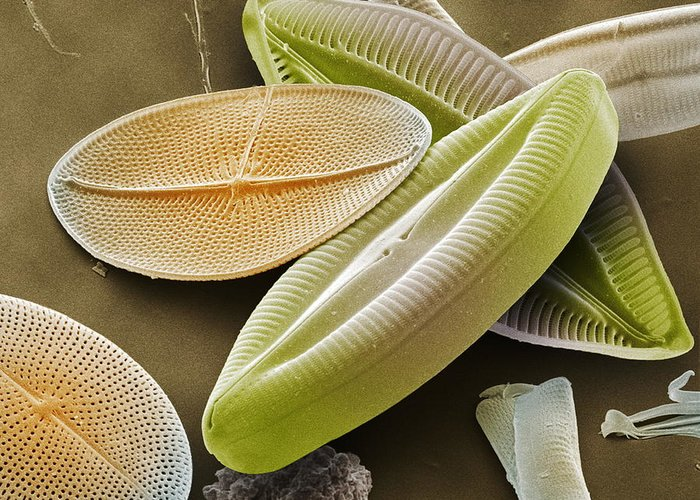 Navicula Palpebralis Greeting Card featuring the photograph Diatoms, Sem by Power And Syred