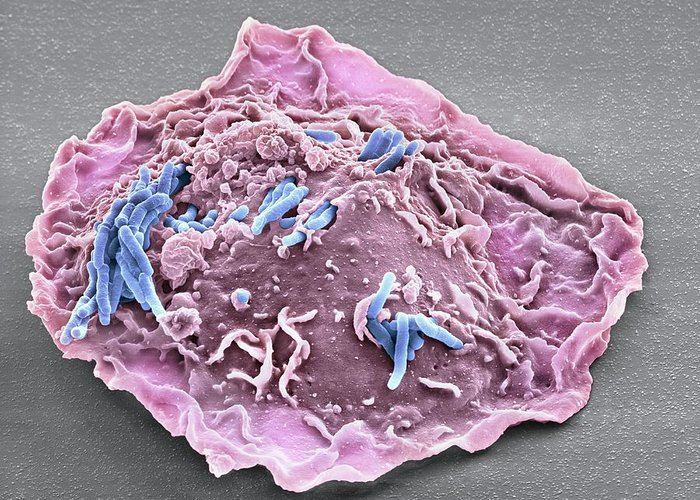 Mycobacterium Tuberculosis Greeting Card featuring the photograph Macrophage Engulfing Tb Bacteria, Sem by Science Photo Library