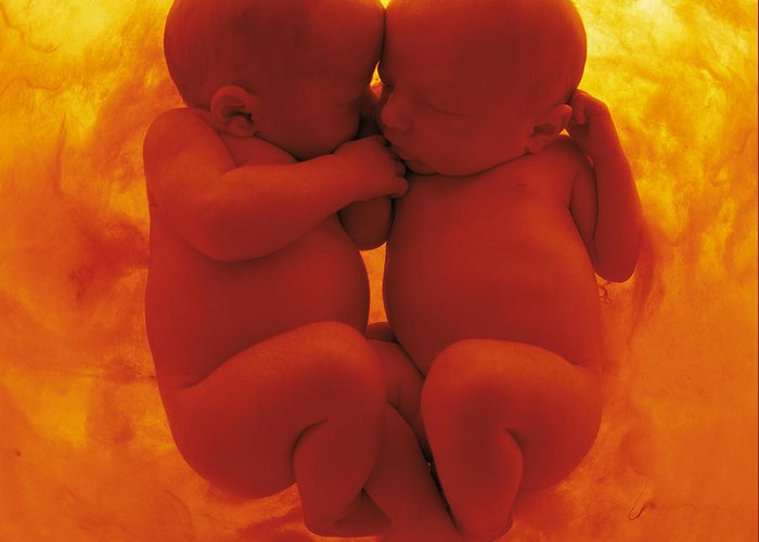 Babies Greeting Card featuring the photograph Untitled by Anne Geddes