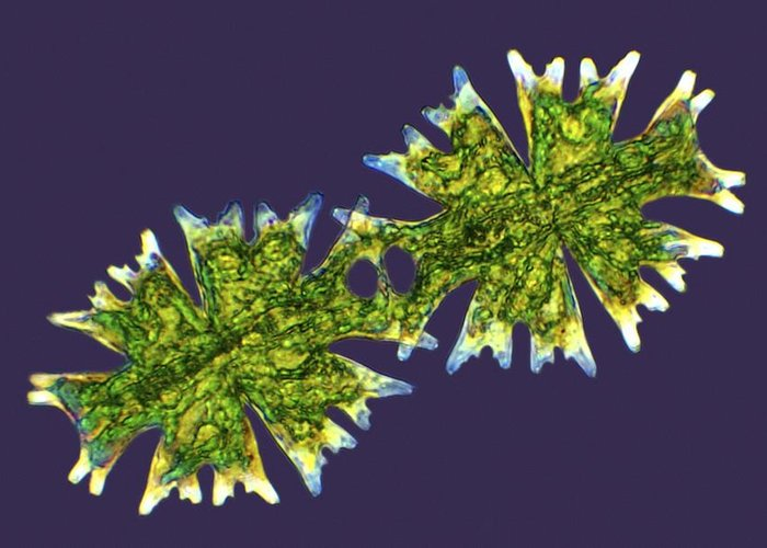Algae Greeting Card featuring the photograph Micrasterias Desmids, Light Micrograph by Science Photo Library