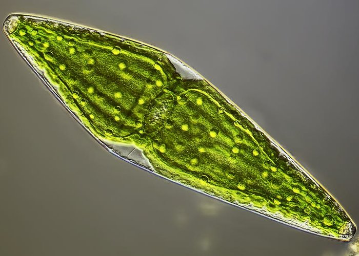 Algae Greeting Card featuring the photograph Desmid, Light Micrograph by Science Photo Library