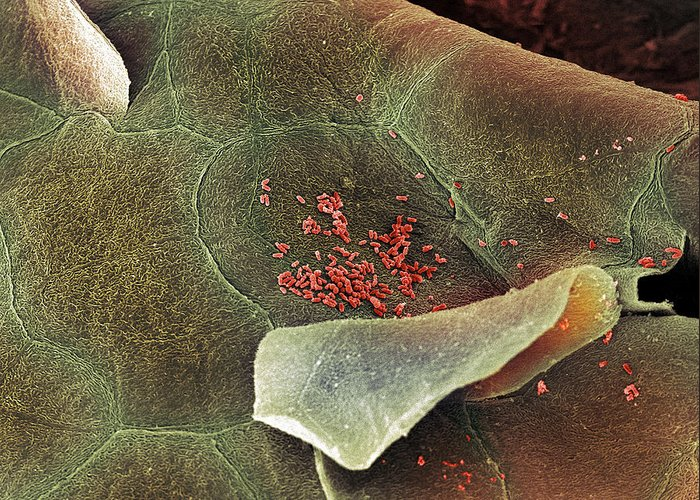 Squamous Epithelium Greeting Card featuring the photograph Bacteria In The Nose, Sem by Steve Gschmeissner