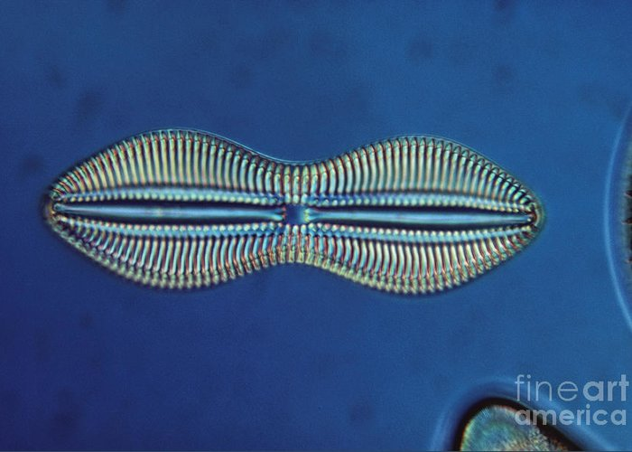 Diatom Greeting Card featuring the photograph Diatom - Diploneis Crabro by Eric V. Grave