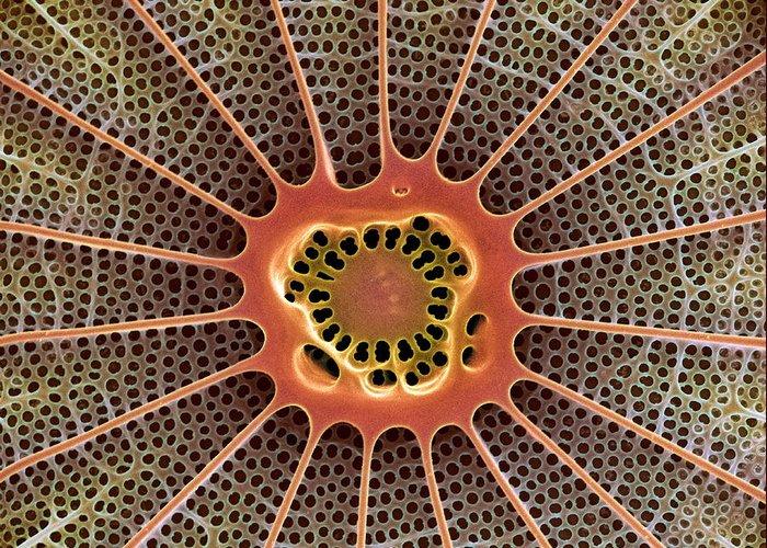 Arachnoidiscus Sp. Greeting Card featuring the photograph Diatom, Sem by Steve Gschmeissner