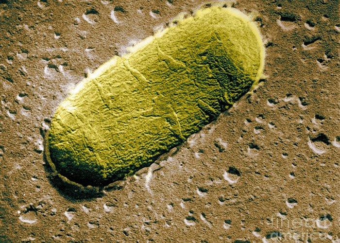 Scanning Electron Micrograph Greeting Card featuring the photograph Tuberculosis Bacillum by Science Source