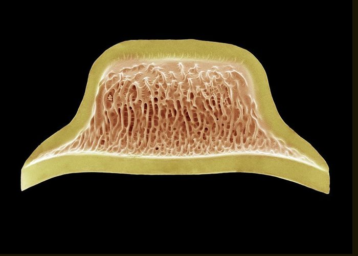 Alga Greeting Card featuring the photograph Diatom, Sem by Steve Gschmeissner