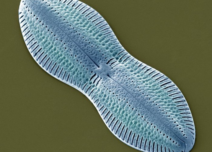 Diploneis Sp. Greeting Card featuring the photograph Diatom, Sem by Steve Gschmeissner