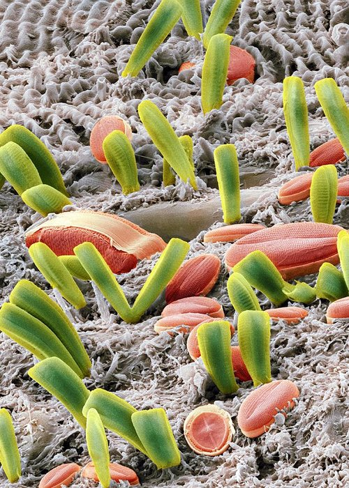 Alga Greeting Card featuring the photograph Diatoms, Sem by Steve Gschmeissner