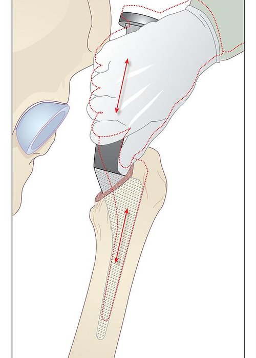 Bone Greeting Card featuring the photograph Hip Replacement, Artwork by Peter Gardiner