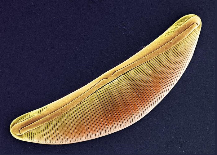 Navicula Sp. Greeting Card featuring the photograph Diatom, Sem by Steve Gschmeissner
