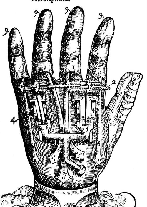 Medical Greeting Card featuring the photograph Artificial Hand Designed By Ambroise by Science Source