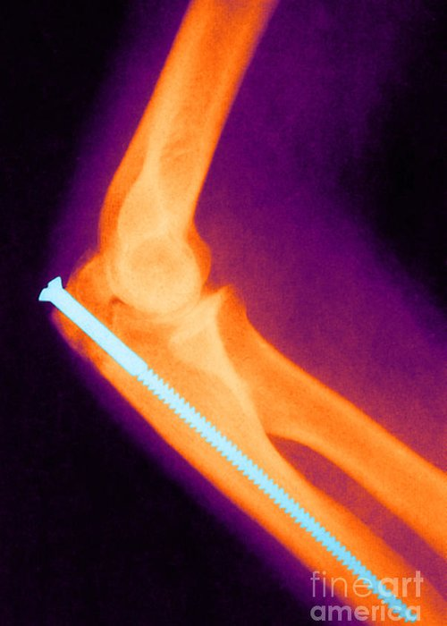 Science Greeting Card featuring the photograph Broken Arm With Metal Pin, X-ray by Science Source