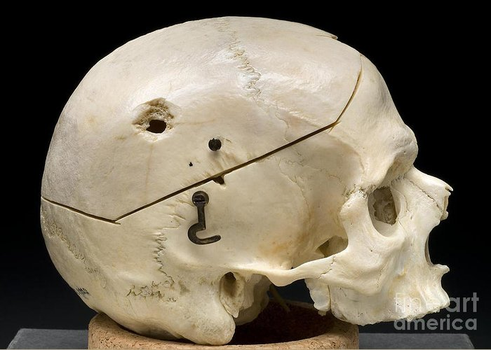 Science Greeting Card featuring the photograph Gunshot Trauma To Skull, 1950s by Science Source