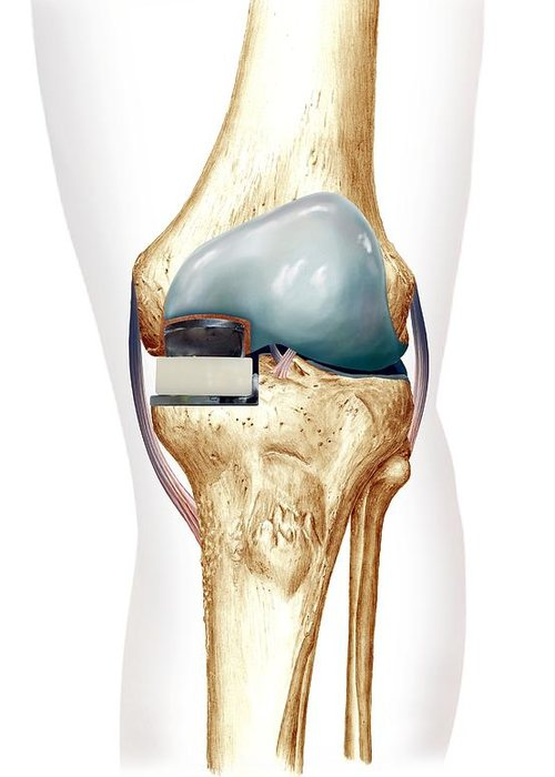 Partial Knee Replacement Greeting Card featuring the photograph Partial Knee Replacement, Artwork by D & L Graphics