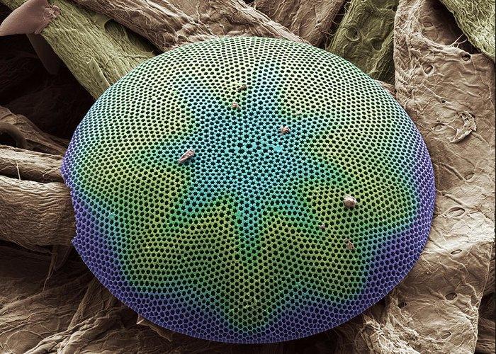 Diatom Greeting Card featuring the photograph Planktonic Diatom Alga, Sem by Steve Gschmeissner