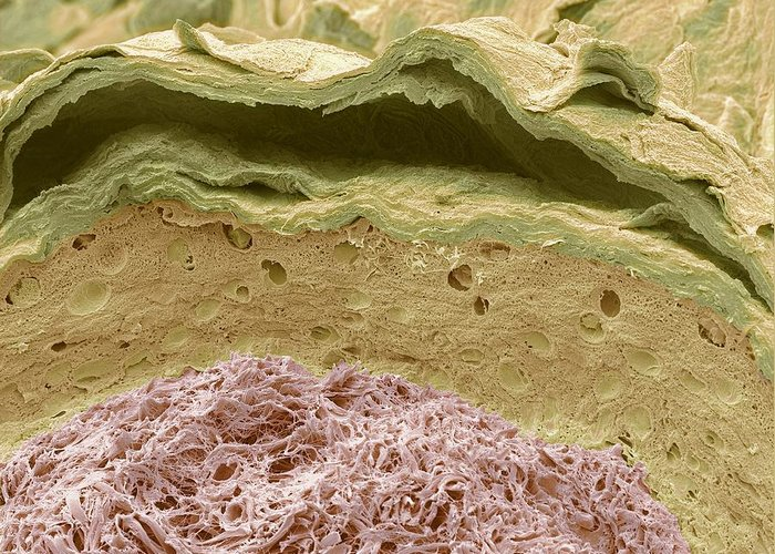 External Auditory Meatus Greeting Card featuring the photograph Primate Ear Canal, Sem by Steve Gschmeissner