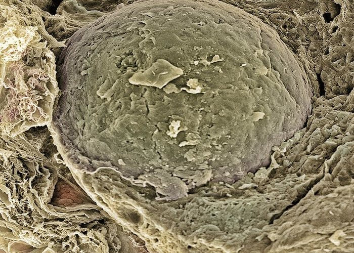 Follicle Greeting Card featuring the photograph Egg Cell, Sem by Steve Gschmeissner