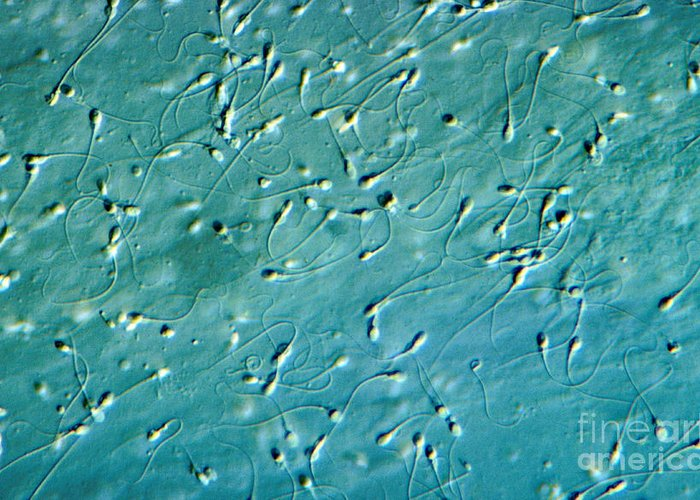 Differential Interference Contrast Microscopy Greeting Card featuring the photograph Human Sperm, Dic by M. I. Walker