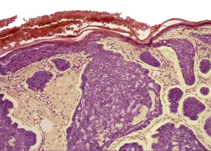 Rodent Ulcer Greeting Card featuring the photograph Skin Cancer, Light Micrograph by Steve Gschmeissner
