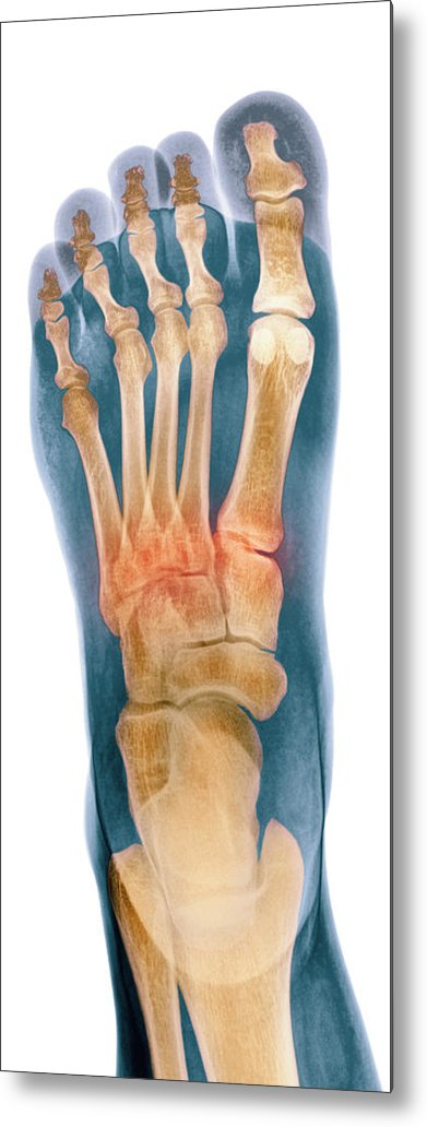 Crushed Broken Foot Metal Print featuring the photograph Crushed Broken Foot, X-ray by