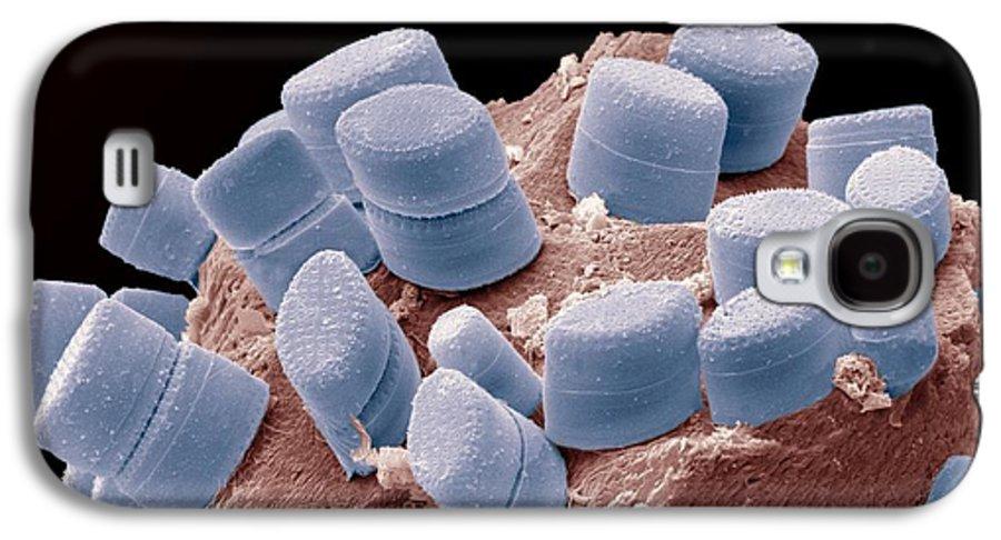 Alga Galaxy S4 Case featuring the photograph Diatoms, Sem by Steve Gschmeissner