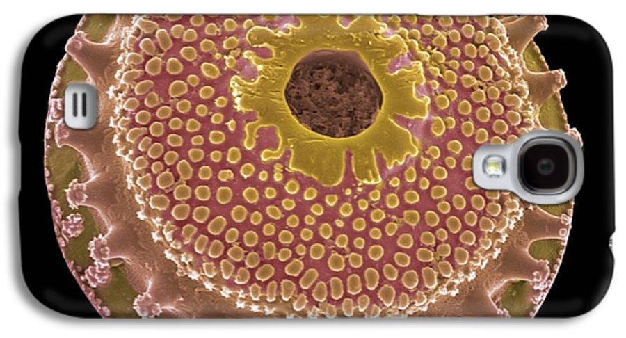 Alga Galaxy S4 Case featuring the photograph Diatom, Sem by Steve Gschmeissner